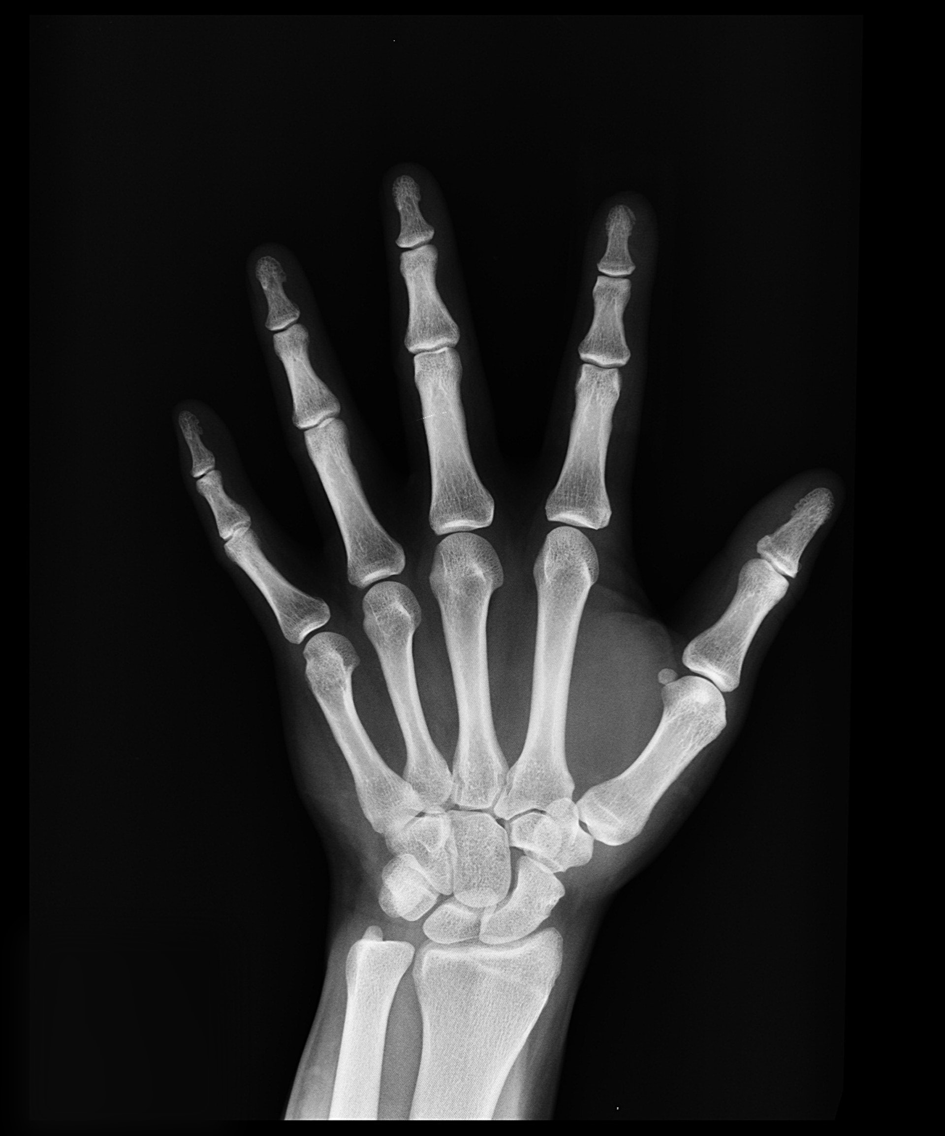 4 Bone Myths You Should Stop Believing In