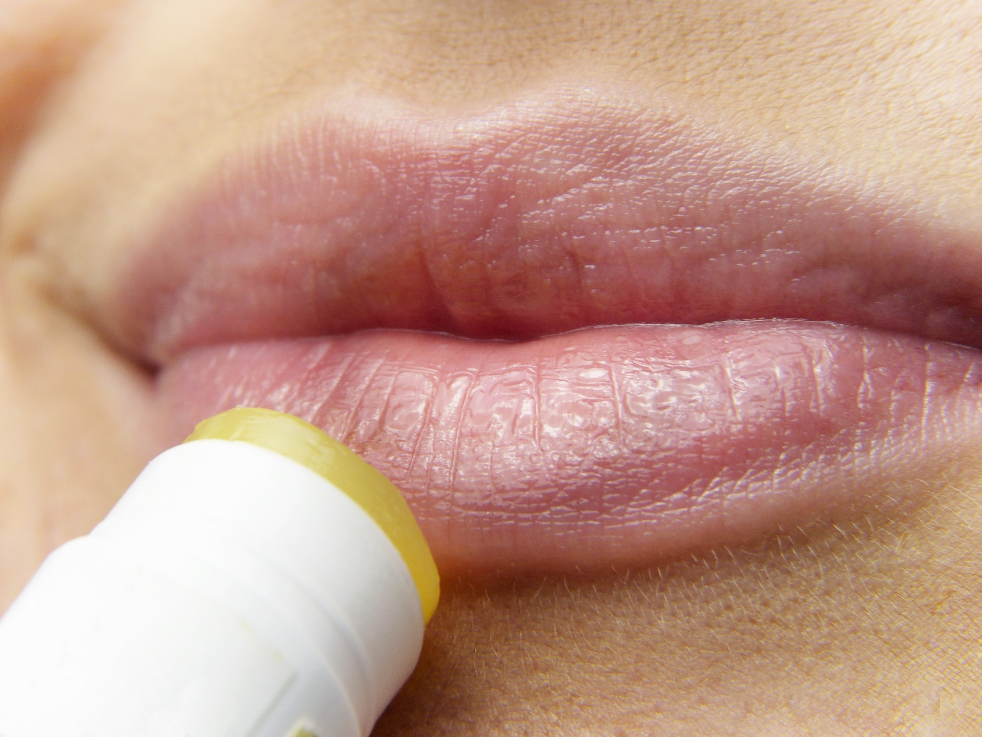 Chapstick vs. Lip Balm: No, They're Not the Same!