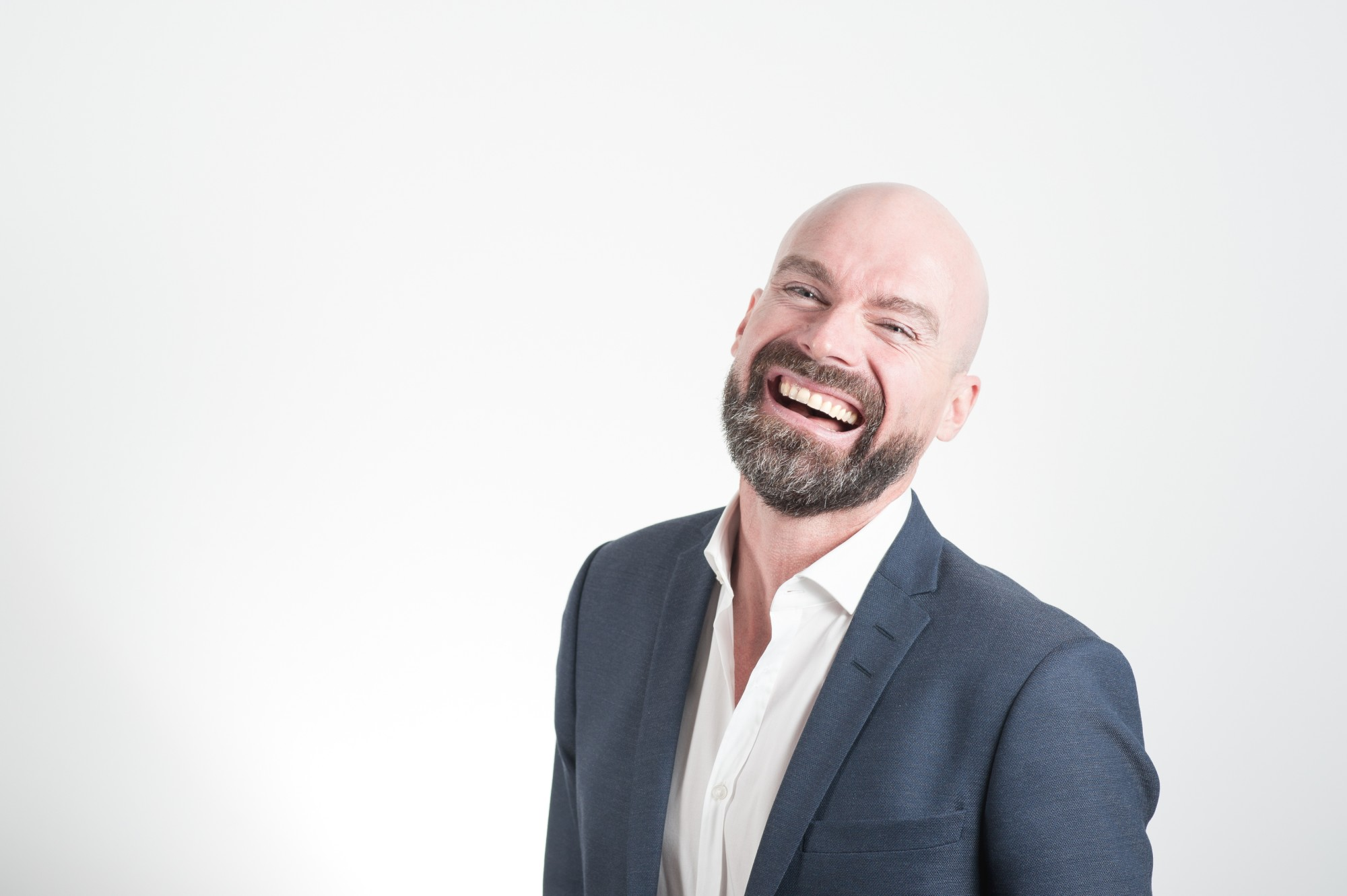 6 Surprising Benefits of Going Bald