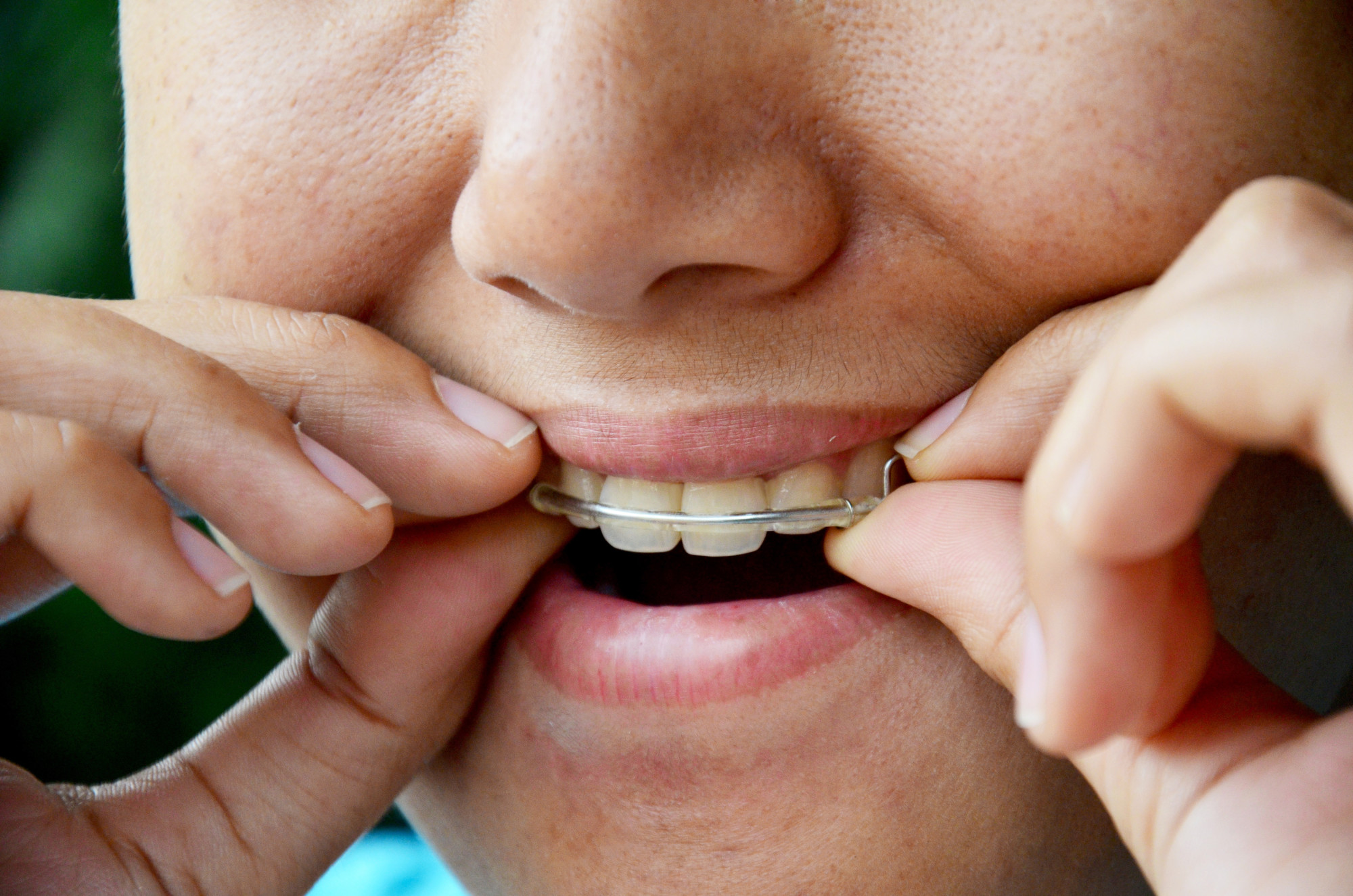 Which Braces Are Right? Types of Braces You Have to Choose From