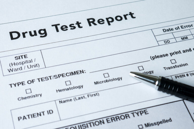 The Kratom Drug Test Guide: What To Know If You Use Kratom